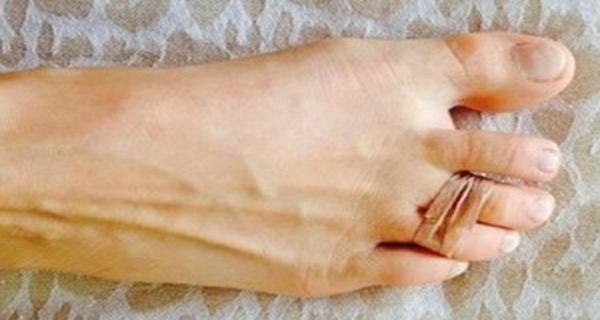 1e77f6901a12 Táto žena si dáva gumičku na dva prsty