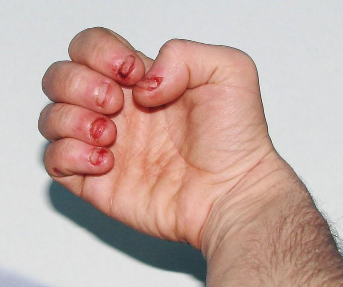 obhryzanie nechtov (3)