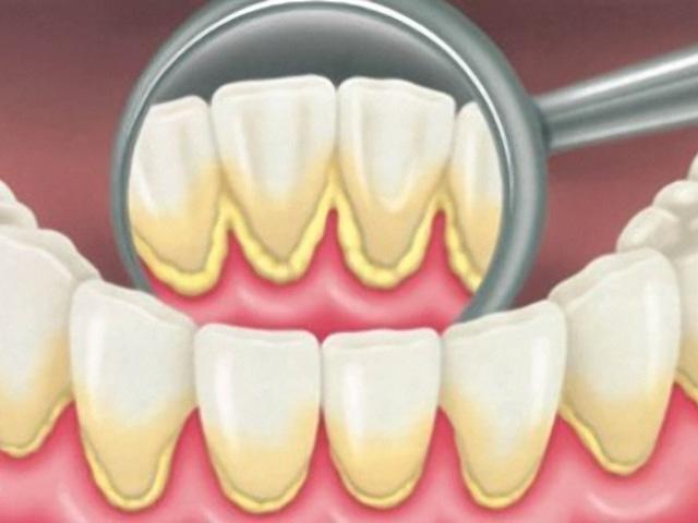 zubny povlak2