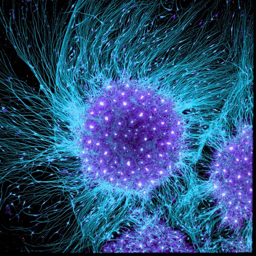 mikroskopicke-zabery-6