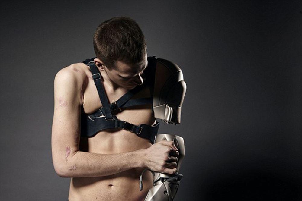 bionicka-ruka2