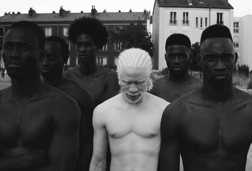 krasa-albinstva