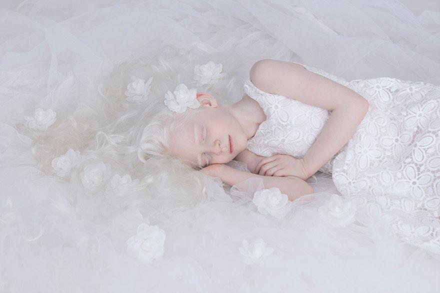 krasa-albinstva1