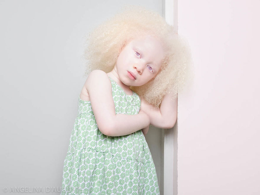 krasa-albinstva10