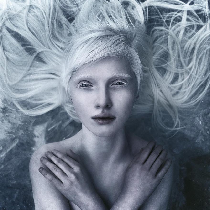 krasa-albinstva12