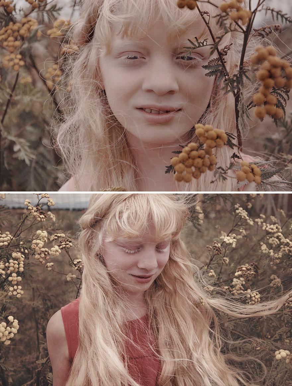 krasa-albinstva14