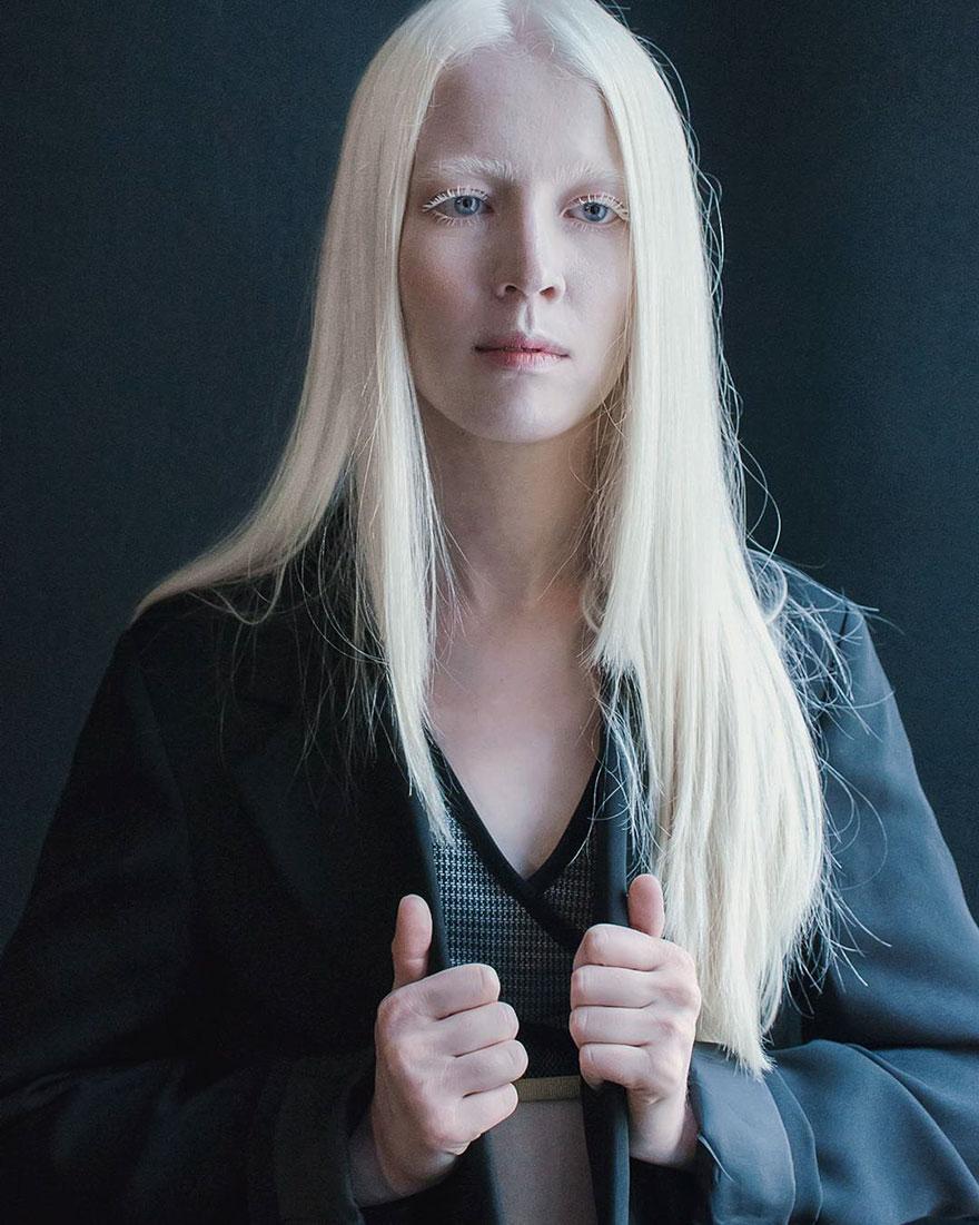 krasa-albinstva17