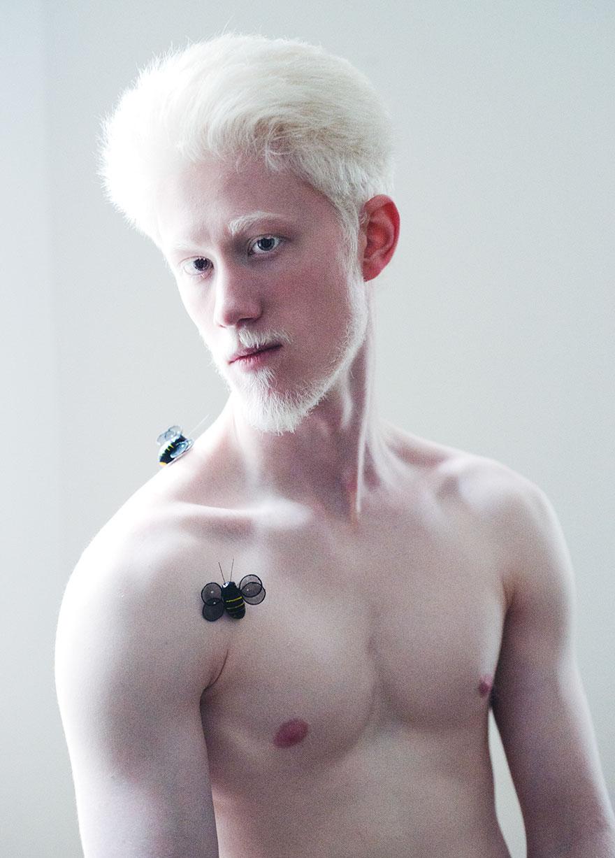 krasa-albinstva19