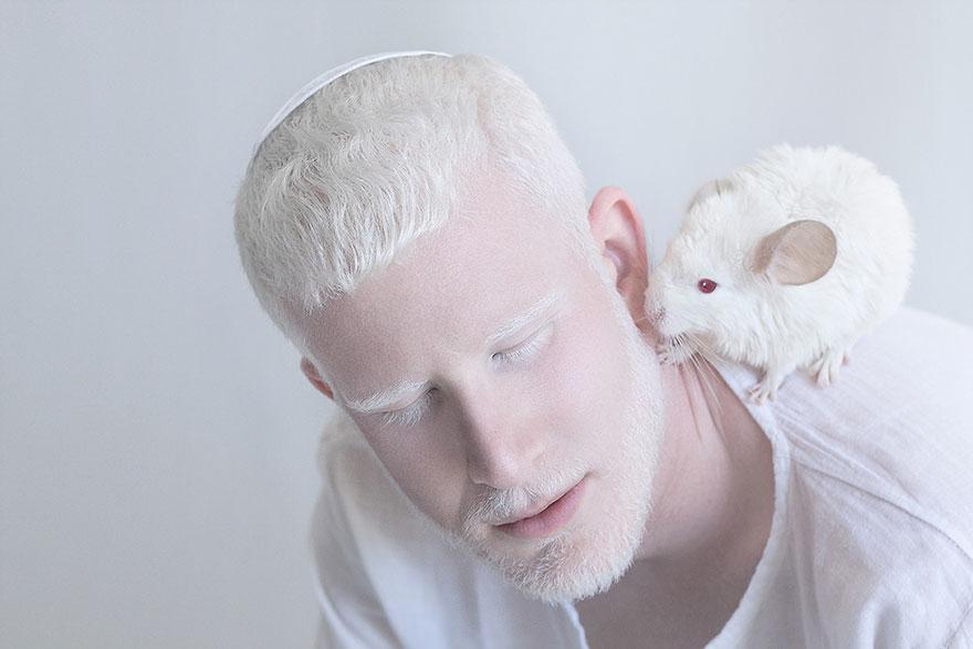 krasa-albinstva2