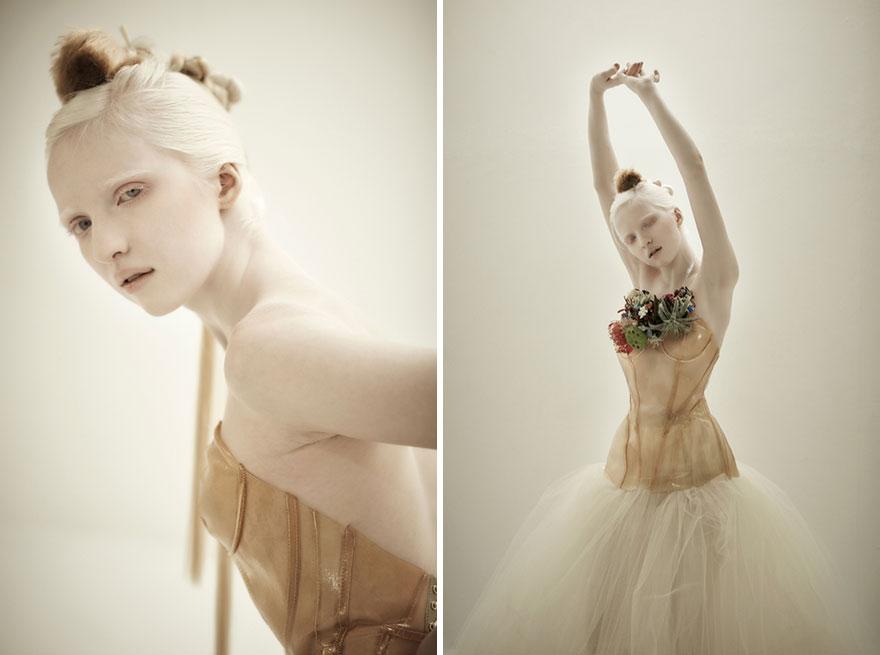 krasa-albinstva20