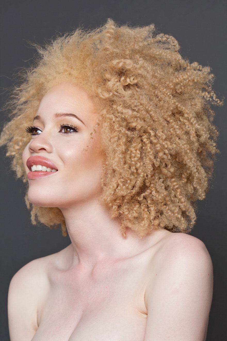 krasa-albinstva5