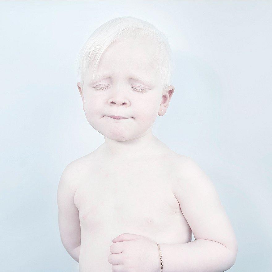 krasa-albinstva9