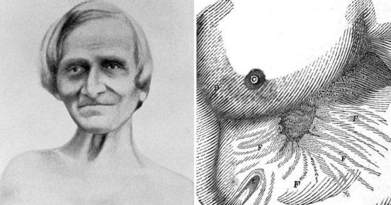 Muž žil roky s dierou v žalúdku. Lekár na ňom začal hrozivý experiment a zistil ako funguje ľudské trávenie