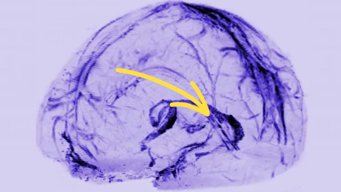 d61df9e6b Vedci objavili novú funkciu mozgu. Toto zistenie môže zásadne ovplyvniť  všetko, čo o tomto záhadnom orgáne vieme