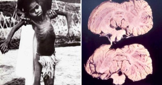 Jedli mozgy svojich druhov. Kvôli rituálnemu kanibalizmu zomierali domorodci v desivej trasúcej sa smrti
