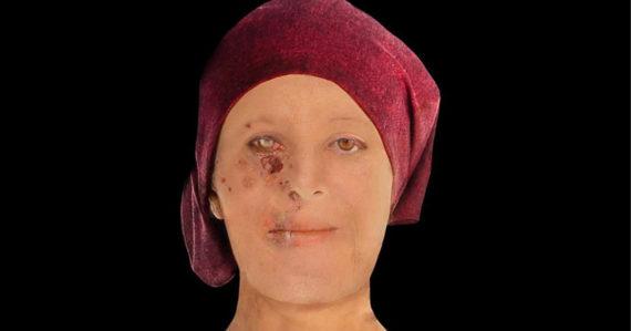 Úžasná digitálna rekonštrukcia tváre ženy zo 16. storočia ukazuje desivé zmrzačenie tváre leprou